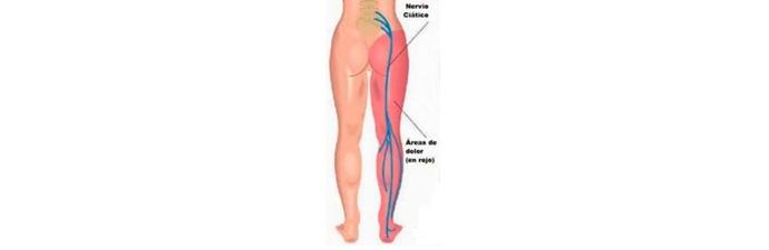 Síndrome-do-Piriforme-2