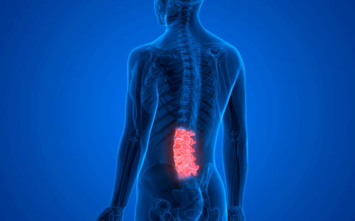 Pilates no tratamento da Espondilólise e Espondilolistese