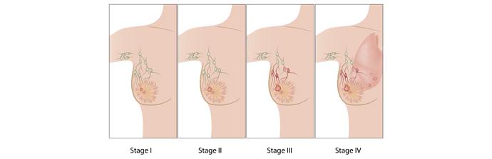 Você sabia que o Método Pilates Auxilia no Tratamento do Câncer de Mama?
