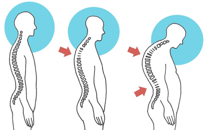 Pilates na Hipercifose Torácica: como realizar o tratamento