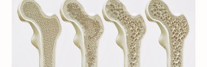 Método Pilates como Prevenção e Reabilitação para Osteoporose