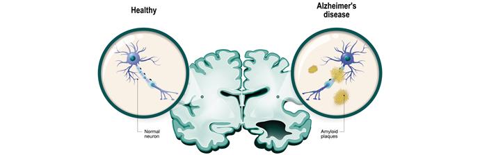 Tudo sobre Pilates nas Patologias Neurológicas