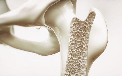 Especial Pilates para Osteoporose: Tudo sobre o Tratamento da Doença