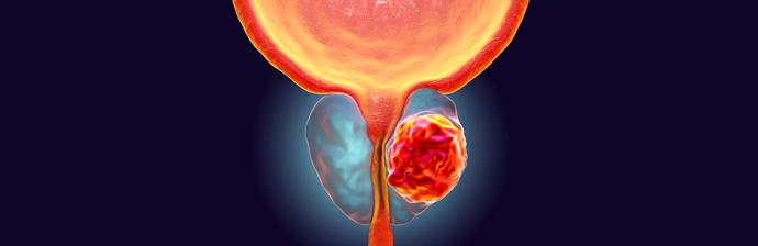 Especial Novembro Azul: Benefícios do Pilates no Câncer de Próstata
