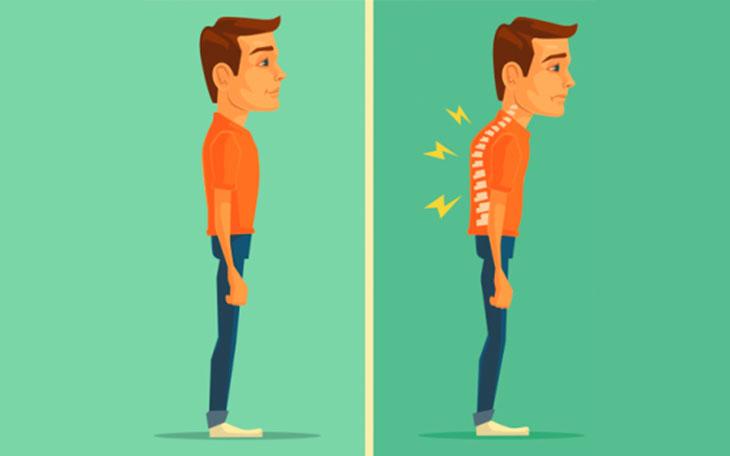 3 Exercícios para Hipercifose Torácica que você pode Usar nas Aulas