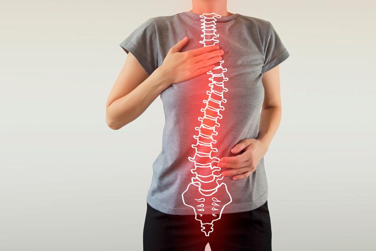 Escoliose: Anatomia, Diagnóstico e Tratamento com Pilates