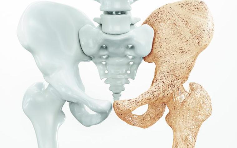 Pilates para Osteoporose: Como o Método Pilates Pode Auxiliar no Tratamento
