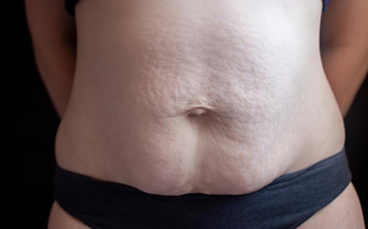 Diástase abdominal: importante reabilitar ou será apenas uma questão estética?