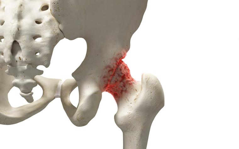 Osteoartrite de quadril: como acontece o tratamento conservador?
