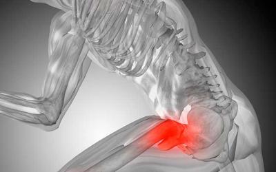 Dicas imperdíveis para tratar dor no quadril (+4 exercícios)