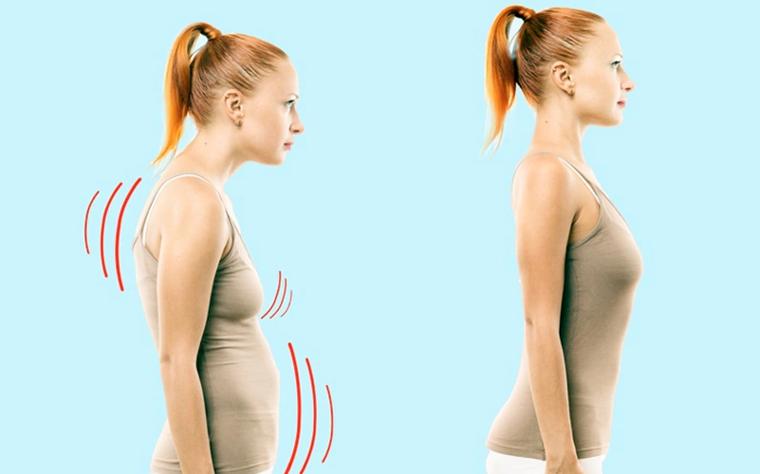 Alterações Posturais e Gordura Localizada: qual a relação durante a atuação do Pilates?