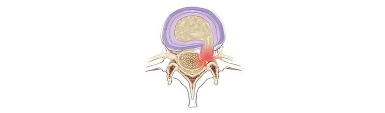 fatores-de-risco-para-hernia-de-disco-extrusa
