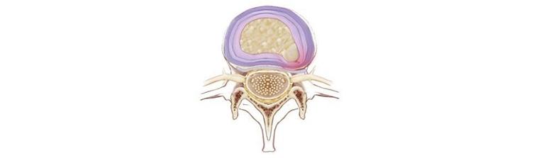 fatores-de-risco-para-hernia-de-disco-protusa