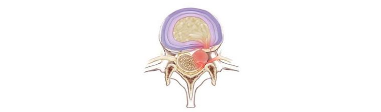 fatores-de-risco-para-hernia-de-disco-sequestrada