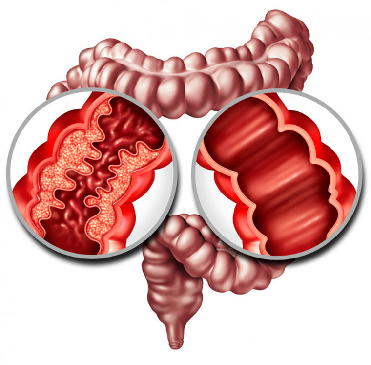 Síndrome de Crohn